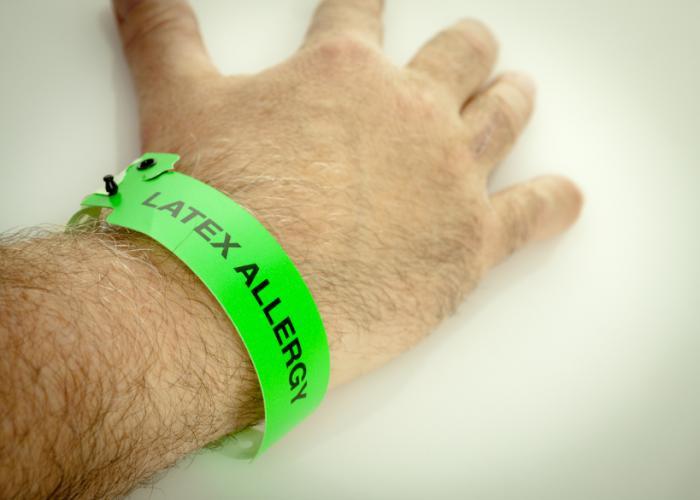 рука с браслетом и надписью аллергия