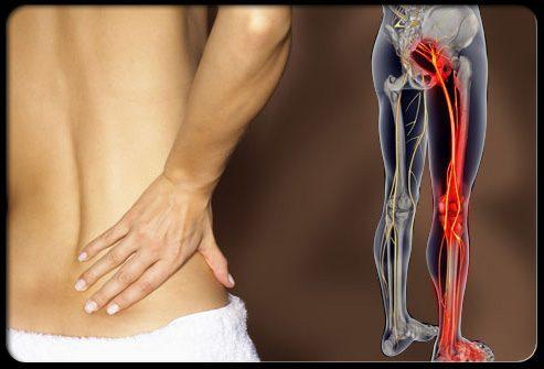 симптомы воспаление седалищного нерва