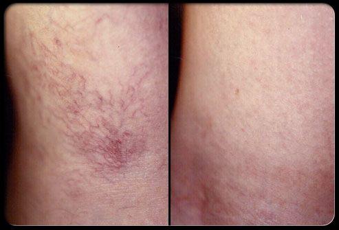 Склеротерапия: до и после проведения