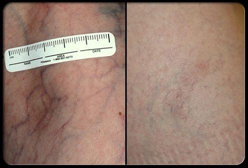 Лазерная терапия: до и после процедуры