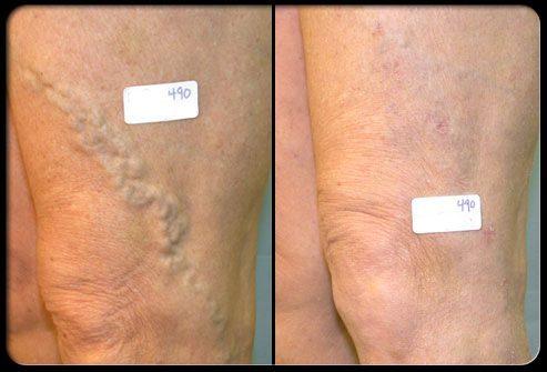 Операция на венах: до и после лечения