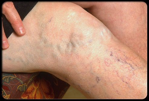 Симптомы телеангиэктазий и варикозно расширенных вен