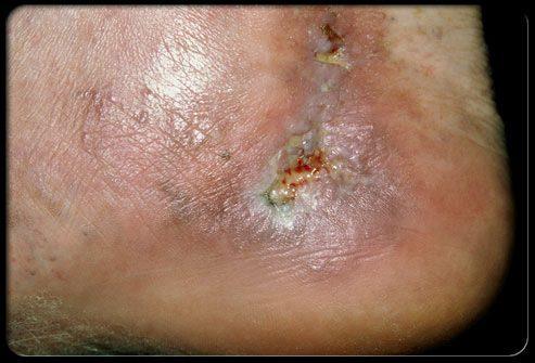 Осложнения паукообразных и варикозно расширенных вен