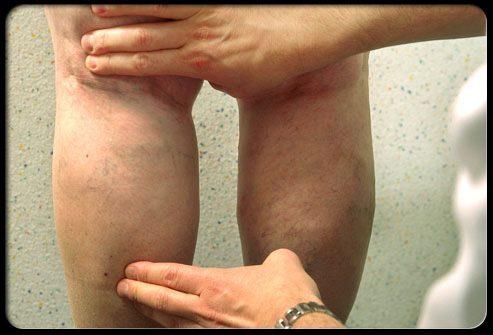 Диагностика сосудистой сетки и варикозно расширенных вен