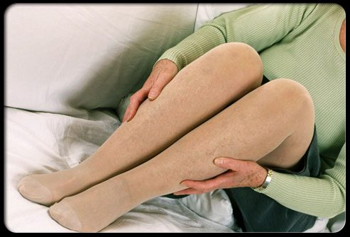 Лечение: компрессионные чулки