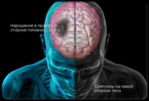 Симптомы инсульта фото