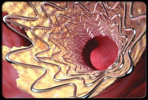 Профилактика инсульта: ангиопластика и стентирование