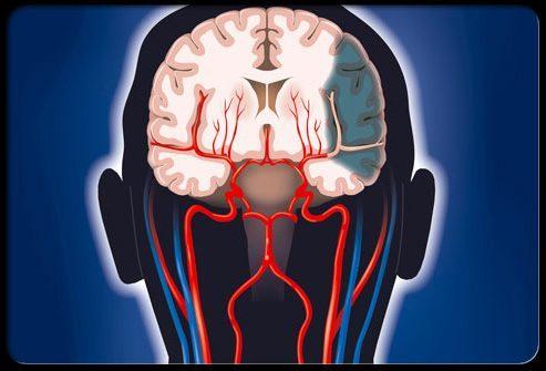 Инсульт: время = повреждение головного мозга