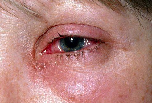 Симптом: Зуд или жжение в глазах