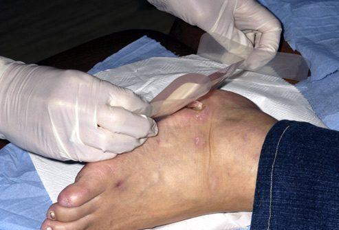 Опасность повреждений стопы
