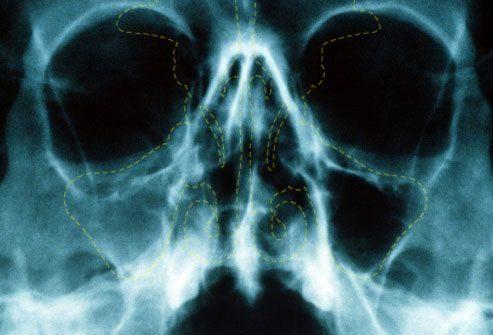 Осложнения синусита: самый плохой сценарий