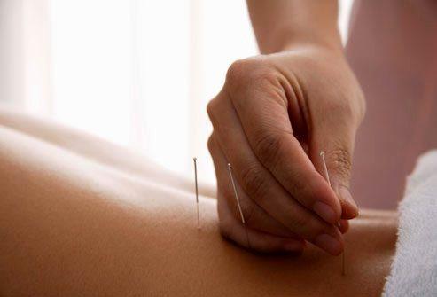 Методы нетрадиционной медицины при рассеянном склерозе