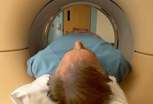 Как диагностируется болезнь Альцгеймера?