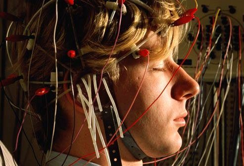 Исследования эпилепсии