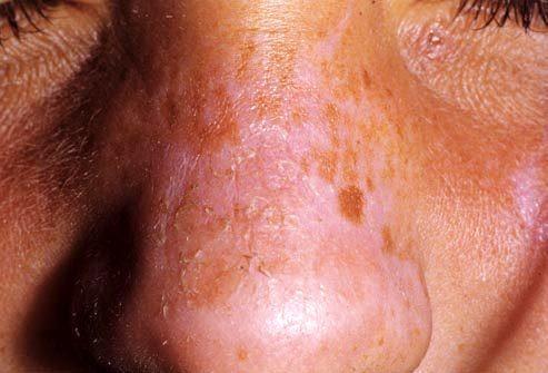 Пилинг кожи