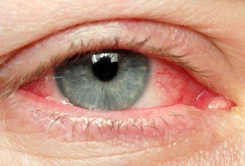 Симптом: Покраснение глаза