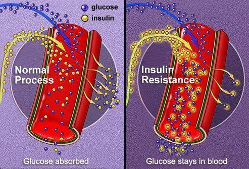 Нарушенный метаболизм