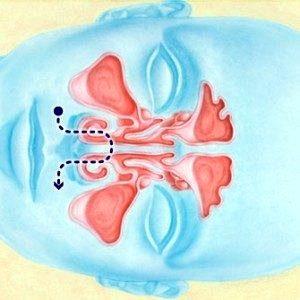 Естественное облегчение симптомов простуды и аллергии