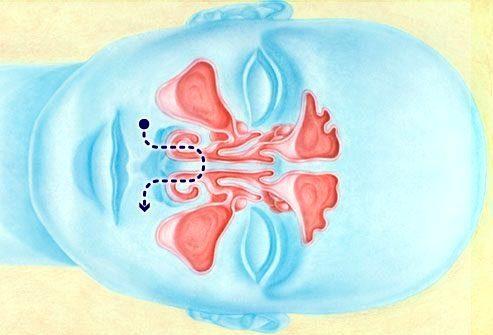 Как работает ирригация (промывание) носовой полости
