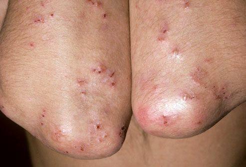 Симптомы целиакии: кожная сыпь