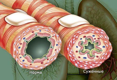 Что вызывает приступы бронхиальной астмы
