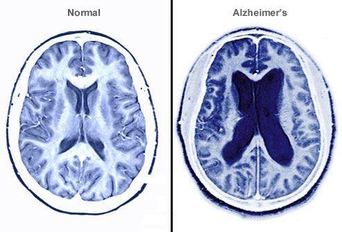 Что происходит с головным мозгом?