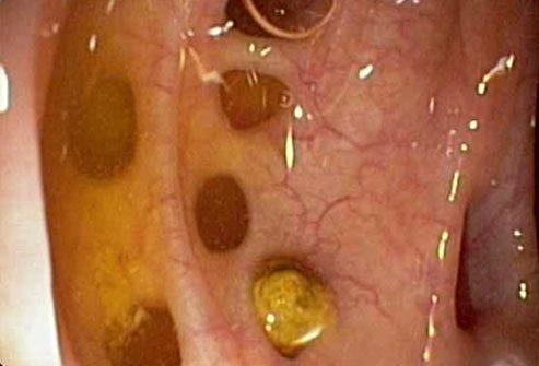 Заболевания, которые имитируют воспалительную болезнь кишечника
