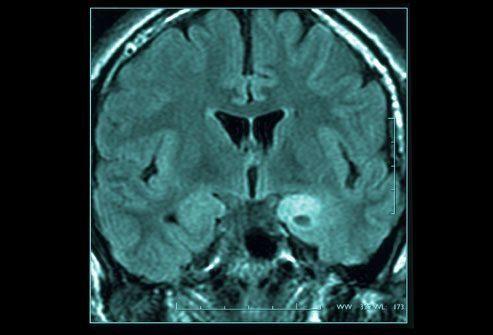 Диагностика: Сканирование головного мозга