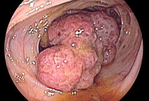 Действительно ли воспалительная болезнь кишечника вызывает рак толстого кишечника?