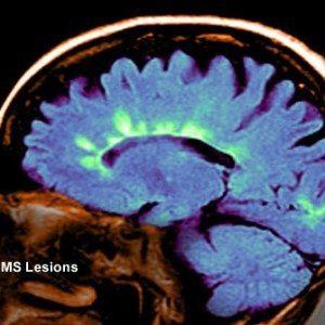 Тревожные признаки рецидива рассеянного склероза