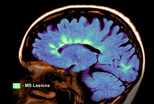 Что происходит во время рецидива рассеянного склероза