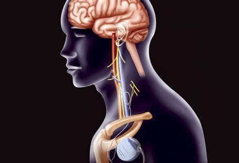 Лечение: Стимуляция блуждающего нерва