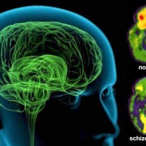 Что такое шизофрения её симптомы  и лечение