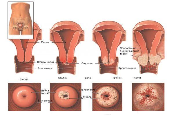 стадии развития эрозии шейки матки