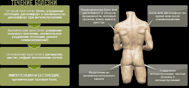 ostriy-prostatit