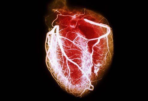 Что такое – заболевания сердца?