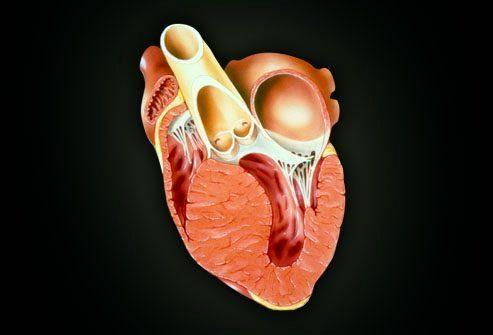 Заболевание сердечной мышцы: Кардиомиопатия