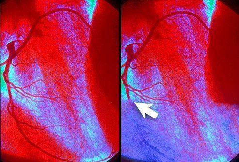 Закрытые артерии