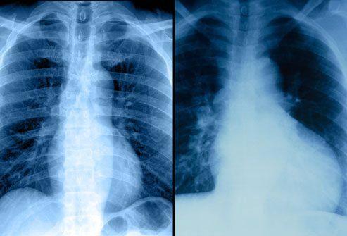 Рентгенография органов грудной полости