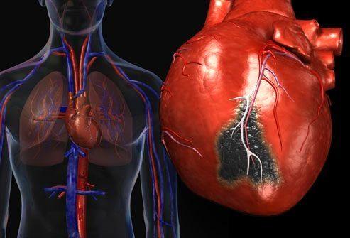 Сердечный приступ: взгляд изнутри
