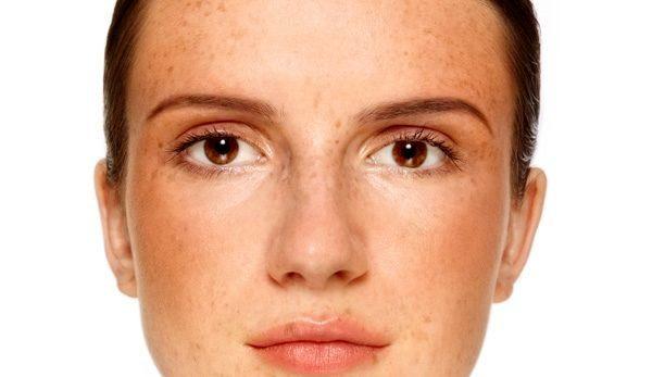 меланин на лице у беременной