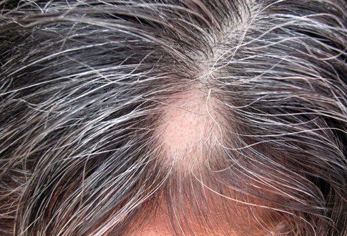 Причины выпадения волос: Очаговая алопеция