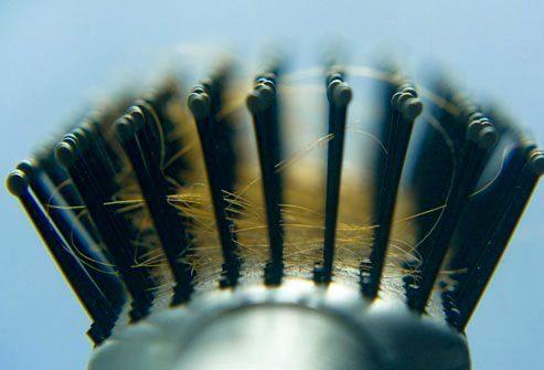 Какая степень потери волос является нормальной?
