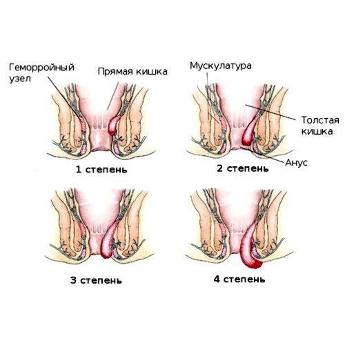 гемморой после родов