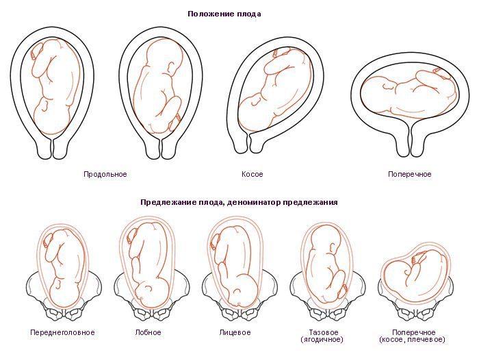 41 неделя беременности проблема предлежаний
