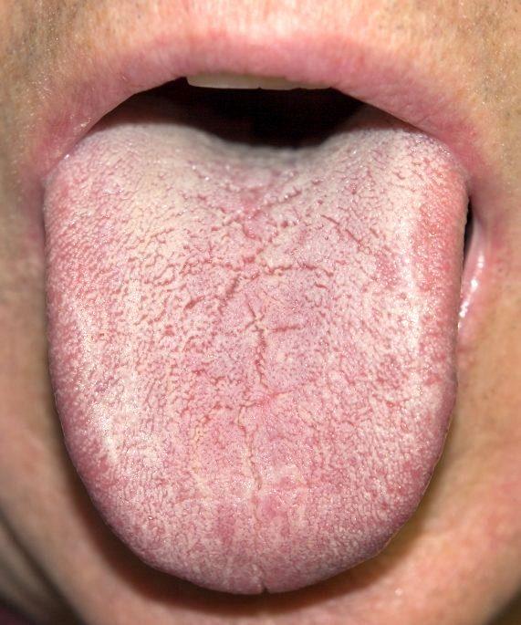 дисбактериоз слизистых оболочек