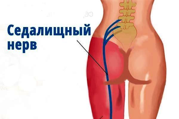 Операция по замене сустава ограничения по