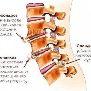 Спондилоартроз позвоночника. Симптомы, диагностика, лечение.
