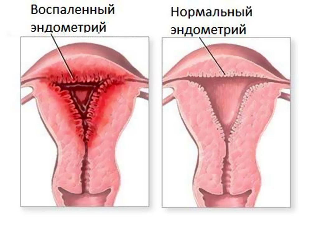 Секс в время менструации