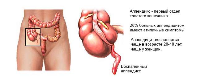 острый-аппендицит-анализы